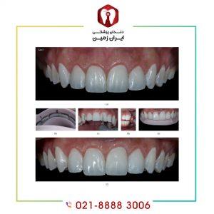 لمینت دندان چگونه انجام می شود ؟