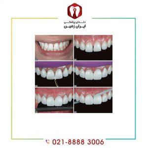کامپوزیت دندان چگونه نصب می شود؟