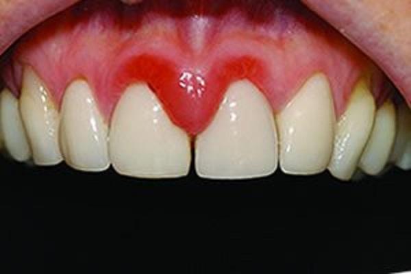 التهاب لثه بعد از کامپوزیت ونیر دندان