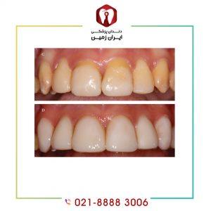 آیا لمینت دندان ضرر دارد ؟