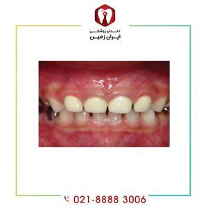 لمینت دندان شیری چه کاربردی دارد؟