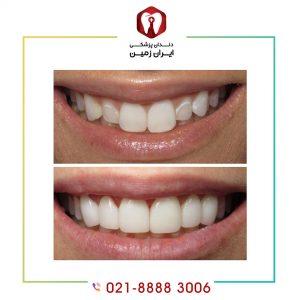 لمینت دندان های نامرتب در چه زمانی امکان پذیر است؟