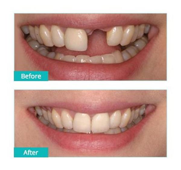 کاندید مناسب برای ایمپلنت دندان