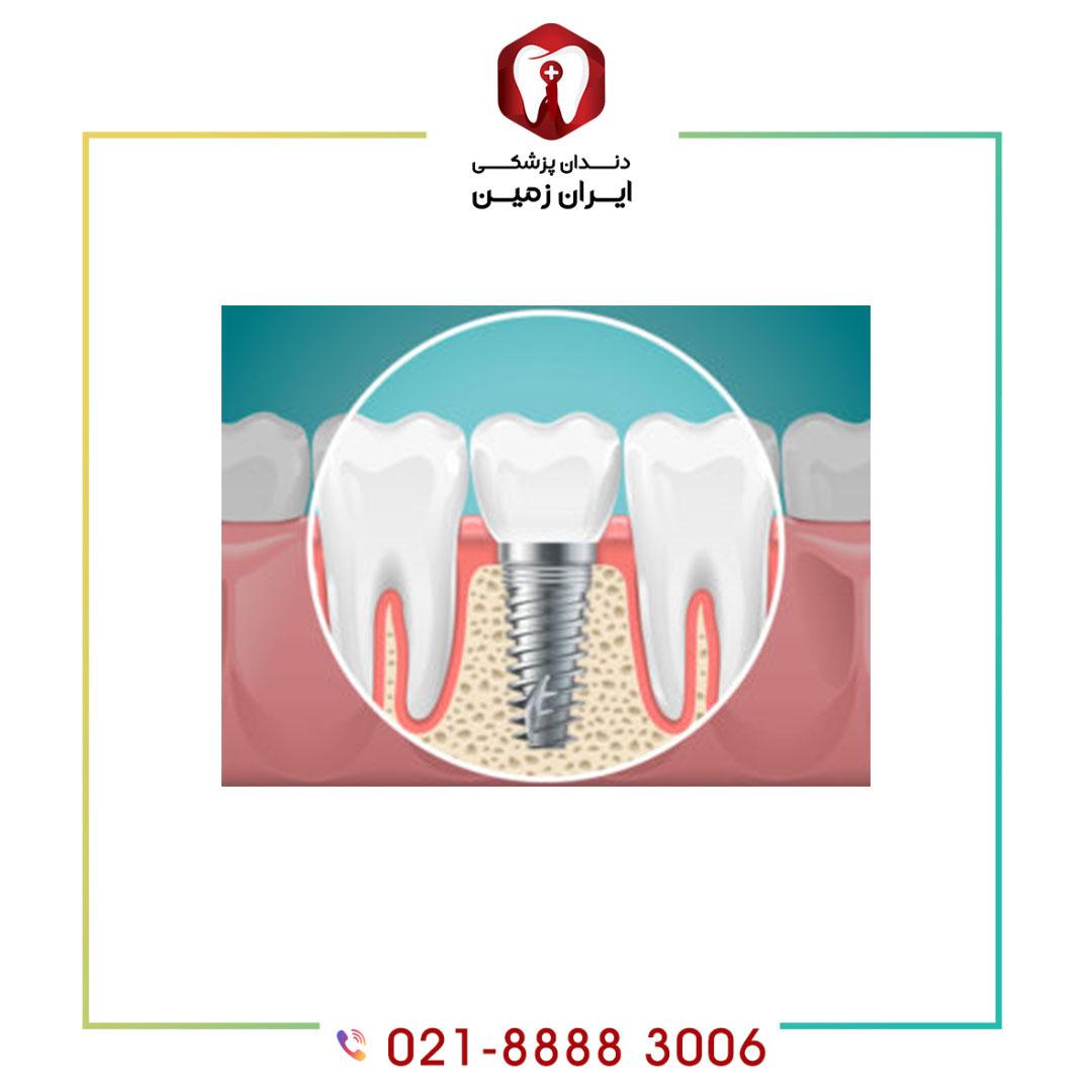 کاندید مناسب برای ایمپلنت دندان چه افرادی هستند؟