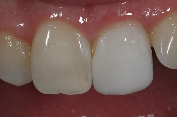 کامپوزیت دندان بدون تراش