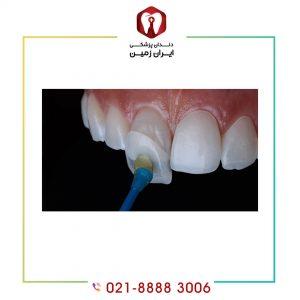 کامپوزیت دندان بدون تراش چگونه انجام می شود؟