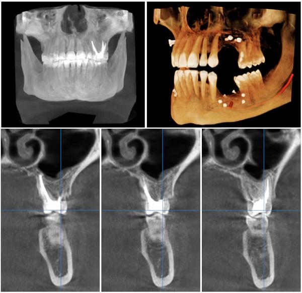 هزینه ایمپلنت دندان دیجیتالی