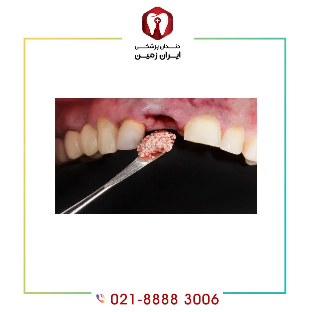 ضرورت پیوند استخوان در ایمپلنت دندان چیست؟