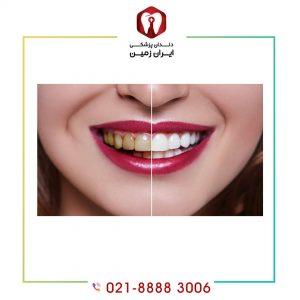پوسیده شدن دندان زیر لمینت دندان به چه دلایلی اتفاق می افتد؟