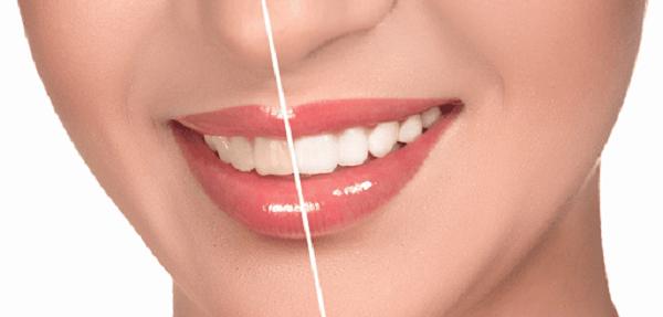 مسواک بعد از لمینت دندان