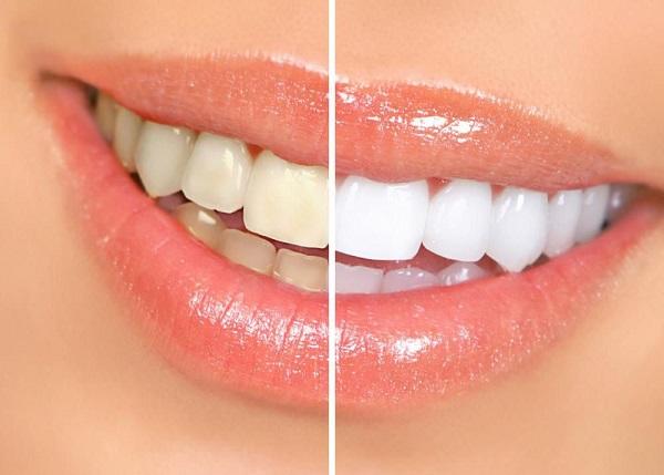 لمینت دندان یعنی چی