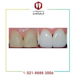 لمینت دندان یعنی چی ؟