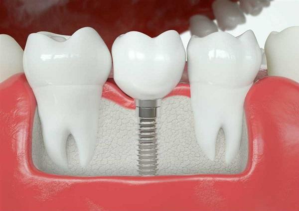 ایمپلنت دندان دیجیتالی برای چه کسی مناسب است