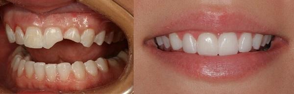 علت ترک برداشتن لمینت دندان