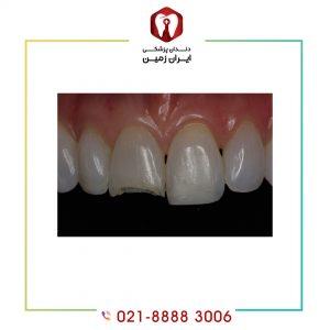 علت ترک برداشتن لمینت دندان چیست؟