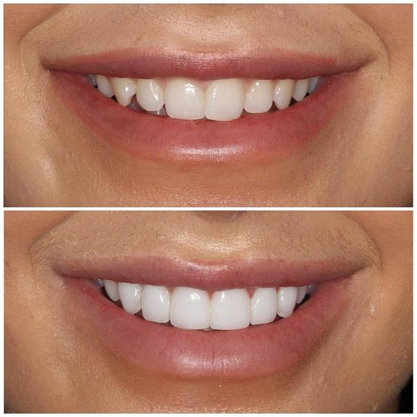 علل کاهش طول عمر کامپوزیت دندان
