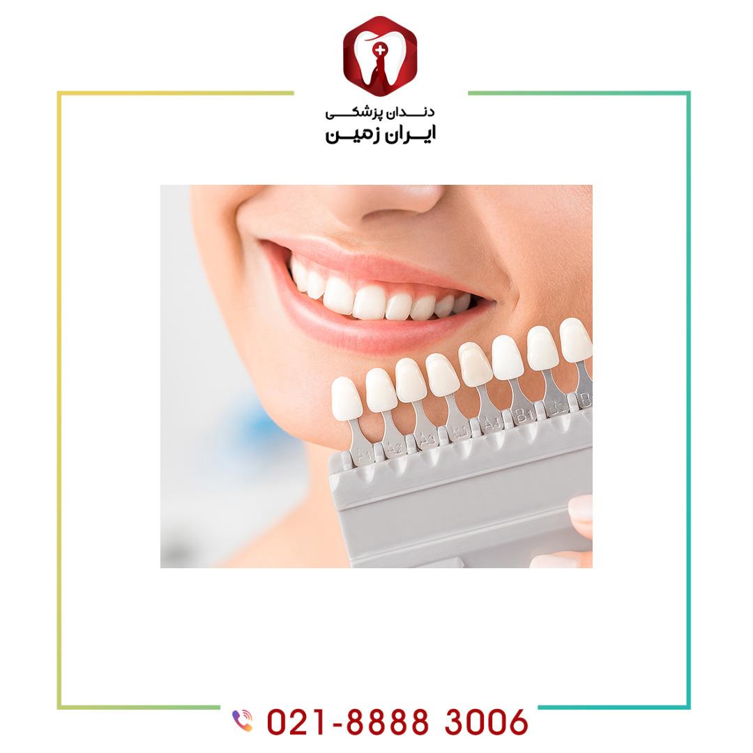 انتخاب رنگ لمینت دندان به چه شکلی انجام می شود؟