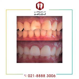 کامپوزیت ونیر دندان شکسته بهترین روش برای ترمیم دندان شکسته