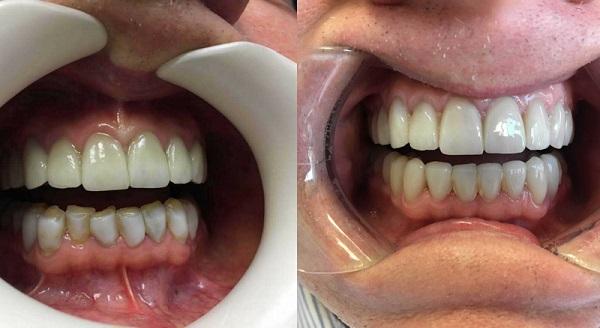 کامپوزیت بهتر است یا روکش دندان