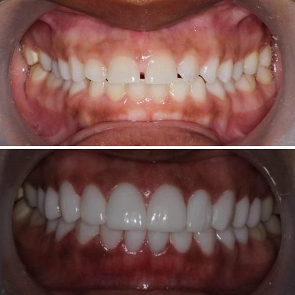 کامپوزیت ونیر بهتر است یا لمینت دندان