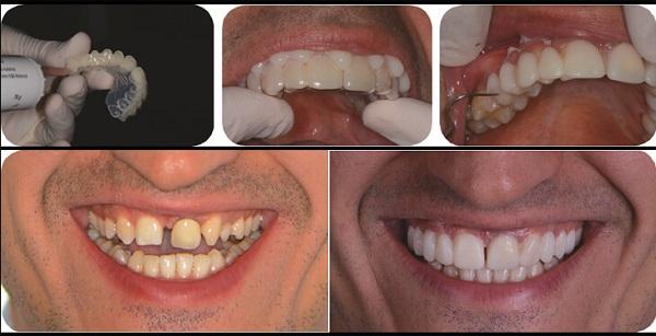 تراش دندان برای لمینت دندان