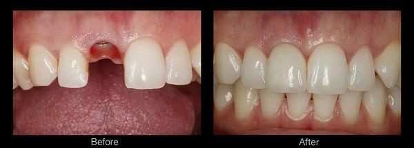 معایب ایمپلنت دندان یک روزه