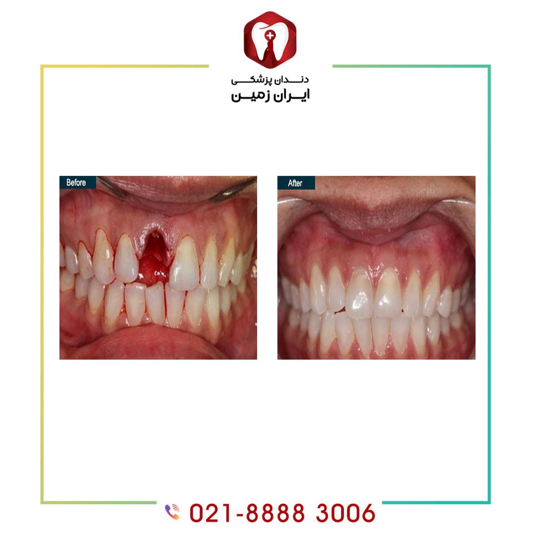 معایب ایمپلنت دندان یک روزه چیست؟