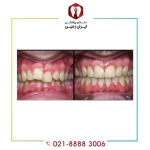 کامپوزیت ونیر دندان نامرتب
