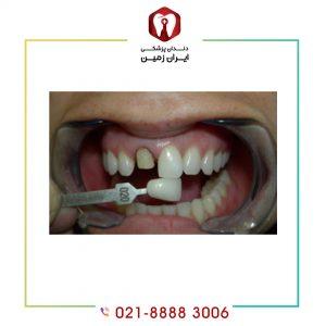 افتادن لمینت دندان به چه دلایلی  اتفاق می افتد؟