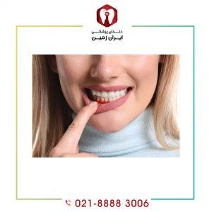 ورم لثه بعد از لمینت دندان به چه دلایلی اتفاق می افتد؟