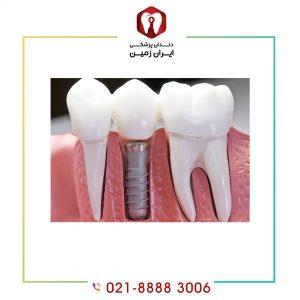 اطلاعات درباره ایمپلنت دندان