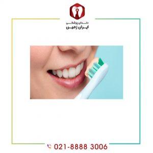 نگهداری از کامپوزیت دندان ضامن ماندگاری کامپوزیت دندان