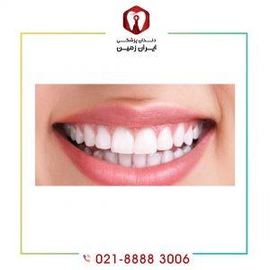 قیمت لمینت دندان طرح لبخند چگونه براورد می شود؟