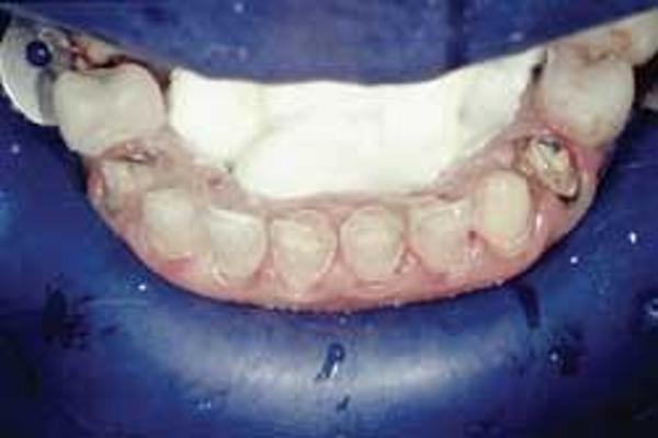 مراحل انجام لمینت سرامیکی دندان