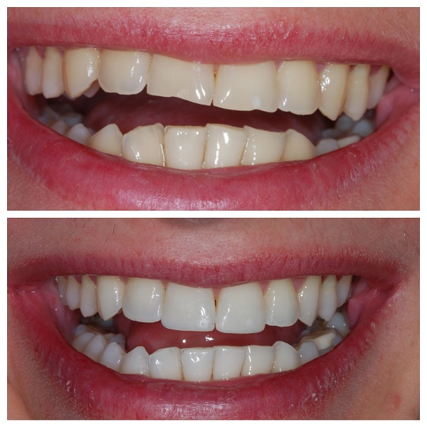 کاندید مناسب کامپوزیت دندان