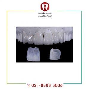 ضخامت لمینت دندانی چه تاثیری در زیبایی دارد؟