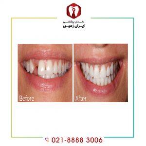 ایمپلنت دندان ارزان می تواند گزینه مناسبی است؟