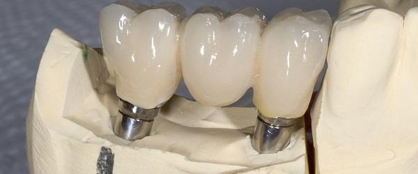 ایمپلنت دندان کره ای