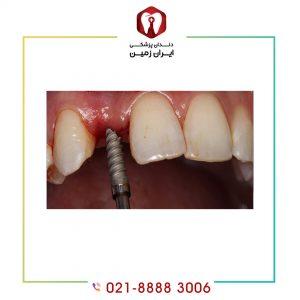ایمپلنت دندان یک روزه چه ویژگی هایی دارد؟ برای چه افرادی مناسب است؟