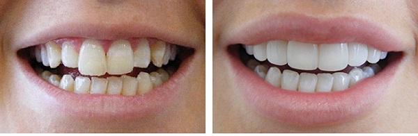 کامپوزیت ونیر دندان کج