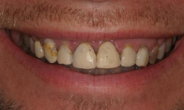 مشکلات کامپوزیت ونیر دندان