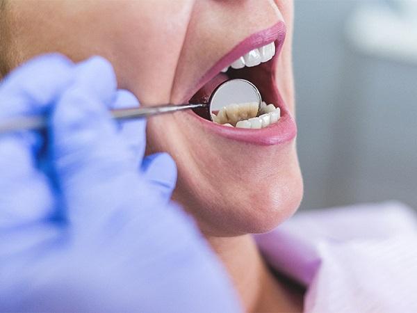 نشانه های عفونت بعد از کامپوزیت دنداننشانه های عفونت بعد از کامپوزیت دندان