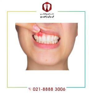 نشانه های عفونت بعد از کامپوزیت دندان