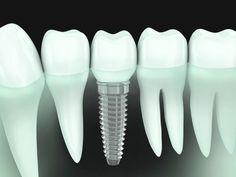 ایمپلنت دندانی چیست