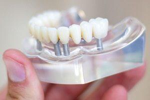 پروتز دندان ثابت یا ایمپلنت