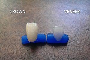 روکش دندان یا کامپوزیت