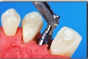 ایمپلنت دندان قیمت مناسب