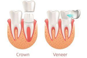 روکش دندان یا لمینت