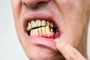 معایب ایمپلنت دندان و راه کار مناسب برای درمان آنها