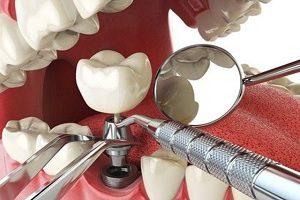 آیا ایمپلنت برای همه مفید است و برای چه افرادی انجام ایمپلنت دندان ممنوع است؟